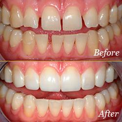 dental-bonding-preston