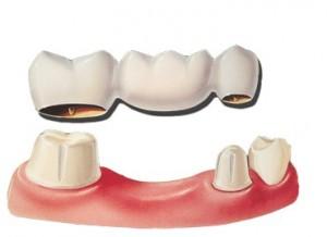 dental-bridges-preston