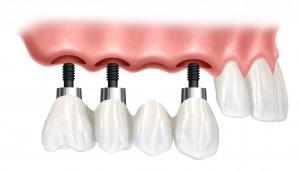 implant221