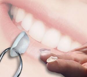 dental-lumineers-preston