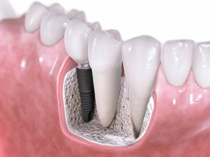 Dental-Implants-preston