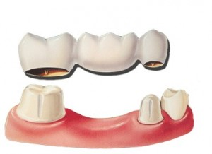 dental-bridges-preston
